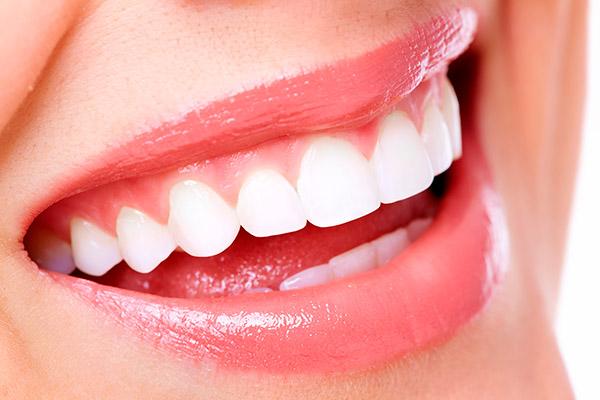 Ha eljött a felnőtt fogszabályozás ideje